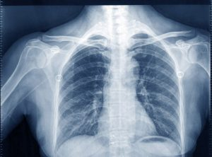 X-ray carbon fiber